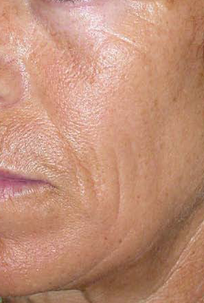 huidverbetering_micro_needling_hyperpigmentatie_na