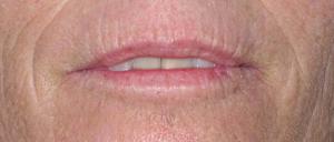 huidverbetering_micro_needling_rimpels_na