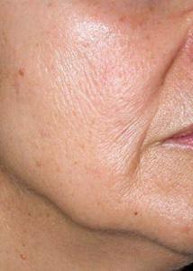 huidverbetering_micro_needling_rimpels_voor